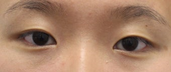 Double eyelid surgery for crease asymmetry before 3366891