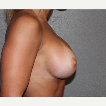 Breast Implant Revision after 3252823