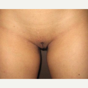 18-24 year old woman treated with Labiaplasty after 3214033