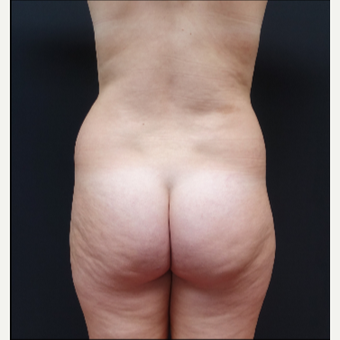 18-24 year old woman treated with Liposculpture before 3315562