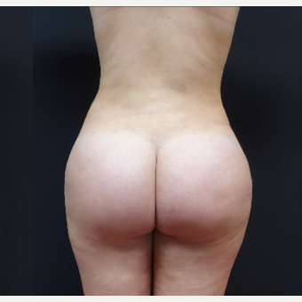 18-24 year old woman treated with Liposculpture after 3315562