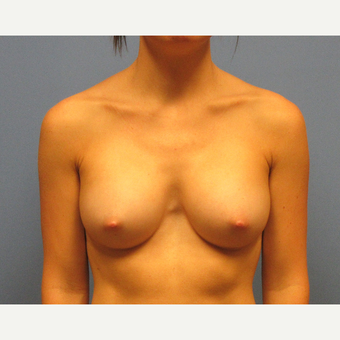 25-34 year old woman treated with Breast Implants after 3636041