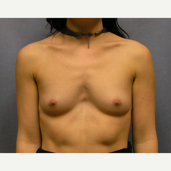 25-34 year old woman treated with Breast Implants before 3636041