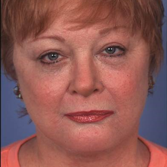 55-64 year old woman treated with Facelift after 2989161