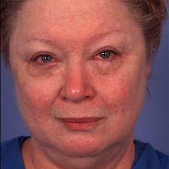 55-64 year old woman treated with Facelift before 2989161
