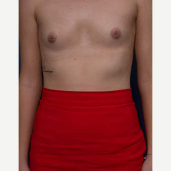 18-24 year old woman treated with Breast Augmentation before 3766932