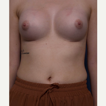 18-24 year old woman treated with Breast Augmentation after 3766932