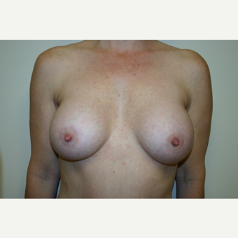 43 year old woman treated with Breast Augmentation after 3444160