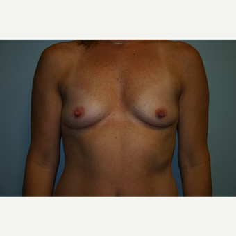 43 year old woman treated with Breast Augmentation before 3444160