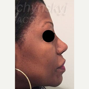 45-54 year old woman treated with Revision Rhinoplasty after 3788188