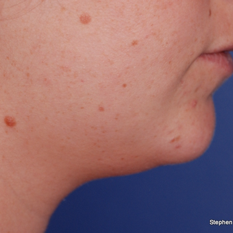 18-24 year old woman treated with Kybella after 3624382