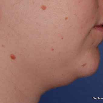 18-24 year old woman treated with Kybella before 3624382