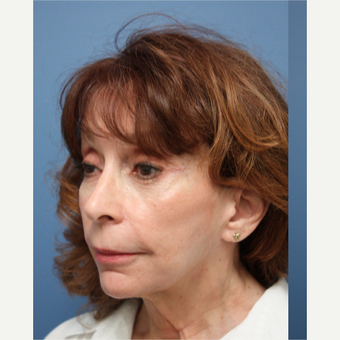 55-64 year old woman treated with Facelift before 3615487