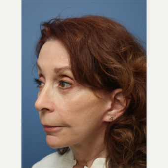 55-64 year old woman treated with Facelift after 3615487