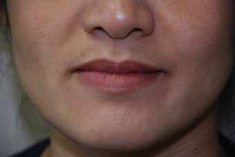 Juvederm to Lips and Smile Lines before 731575