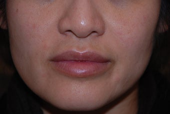 Juvederm to Lips and Smile Lines after 731575
