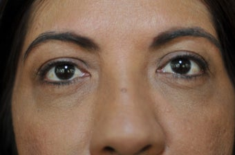 55-64 year old woman treated with Ultherapy 1584946