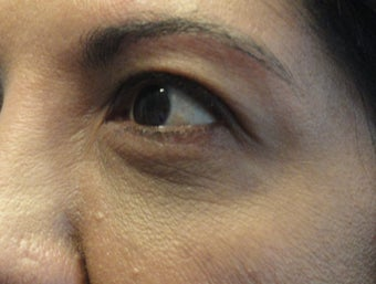 55-64 year old woman treated with Ultherapy before 1584946