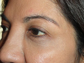 55-64 year old woman treated with Ultherapy after 1584946
