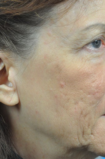 CO2 Full Face Laser Resurfacing before 1500171