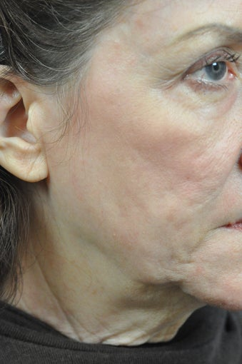 CO2 Full Face Laser Resurfacing after 1500171