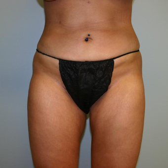29 year old woman treated with Liposuction after 3442426
