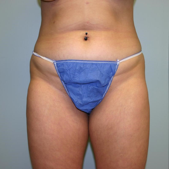 29 year old woman treated with Liposuction before 3442426
