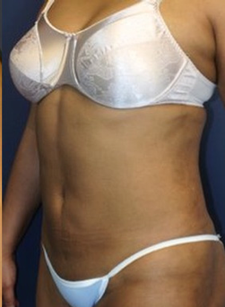 45-54 year old woman treated with Liposuction