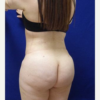 27 y/o female - 1500cc per side  Lipo abdomen, flanks, back with fat transfer to the buttocks after 3433755