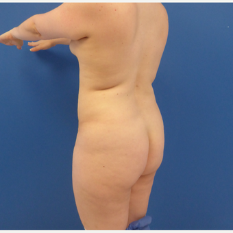 27 y/o female - 1500cc per side  Lipo abdomen, flanks, back with fat transfer to the buttocks before 3433755