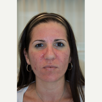 35-44 year old woman treated with Acne Treatment before 3287805