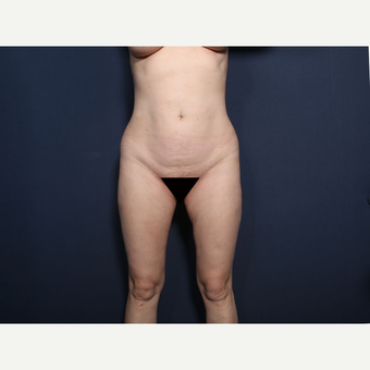 35-44 year old woman treated with Liposuction (view 1 of 2) after 3181846