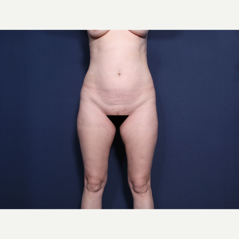 35-44 year old woman treated with Liposuction (view 1 of 2) before 3181846