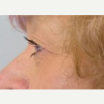 55-64 year old woman treated with Eyelid Surgery before 3093673