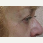 55-64 year old woman treated with Eyelid Surgery after 3093673