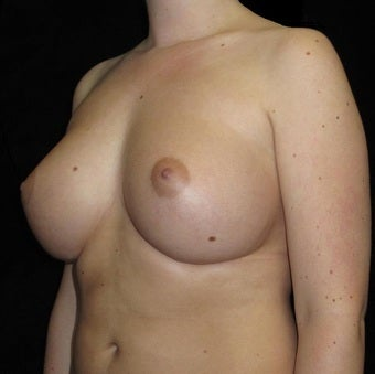 21 year old woman with asymmetry treated with Breast Augmentation 3104730