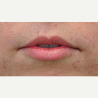 Lip Augmentation for thinner lips before 3565349