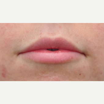 Lip Augmentation for thinner lips after 3565349