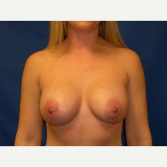 35-44 year old woman treated with Breast Augmentation after 3009248
