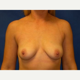 35-44 year old woman treated with Breast Augmentation before 3009248