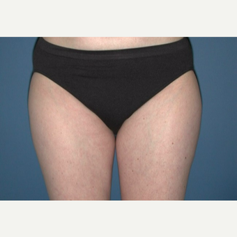 25-34 year old woman treated with Liposuction of Outer Thighs after 3003094