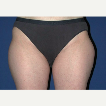 25-34 year old woman treated with Liposuction of Outer Thighs before 3003094
