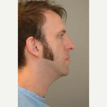 35-44 year old man treated with Chin Liposuction before 3332357