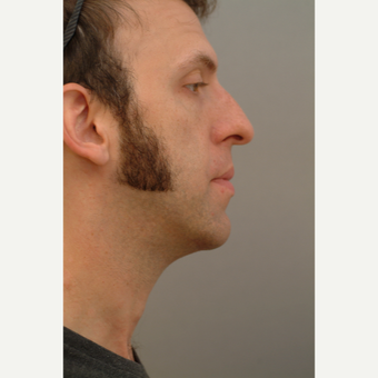 35-44 year old man treated with Chin Liposuction after 3332357