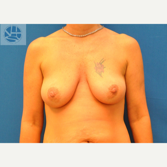 25-34 year old woman treated with Breast Lift before 3494458