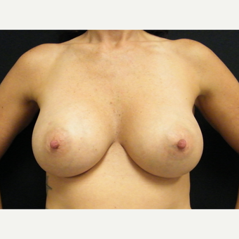 35-44 year old woman treated with Breast Augmentation after 3465712