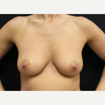 35-44 year old woman treated with Breast Augmentation before 3465712
