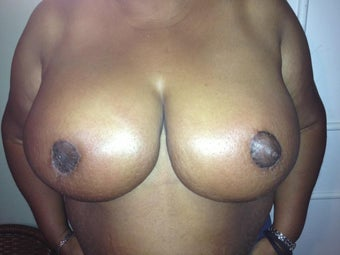 42 year old female who underwent Ultimate Breast Reduction