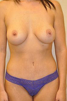 Mommy Makeover: Abdominoplasty and Breast Augmentation after 605782