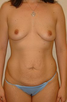 Mommy Makeover: Abdominoplasty and Breast Augmentation before 605782